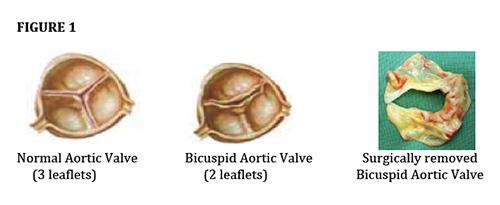 cardio valves 2018