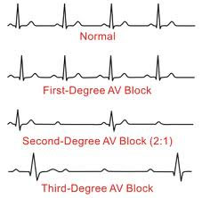 Heart Rhythms Made Easy   Medical, Easy and School